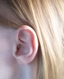 hearingaidclose